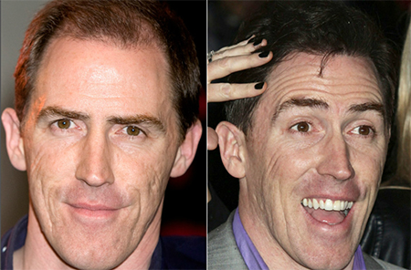 Rob Brydon hair transplant